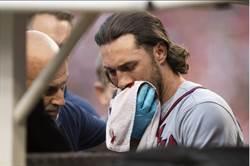 MLB》勇士晉季後賽 球員卻臉部遭球直擊爆血