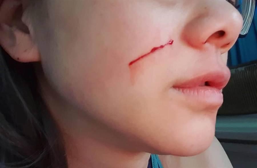 造成邵庭受傷的「兇手」曝光,是家裡的愛貓。(翻攝自邵庭臉書)