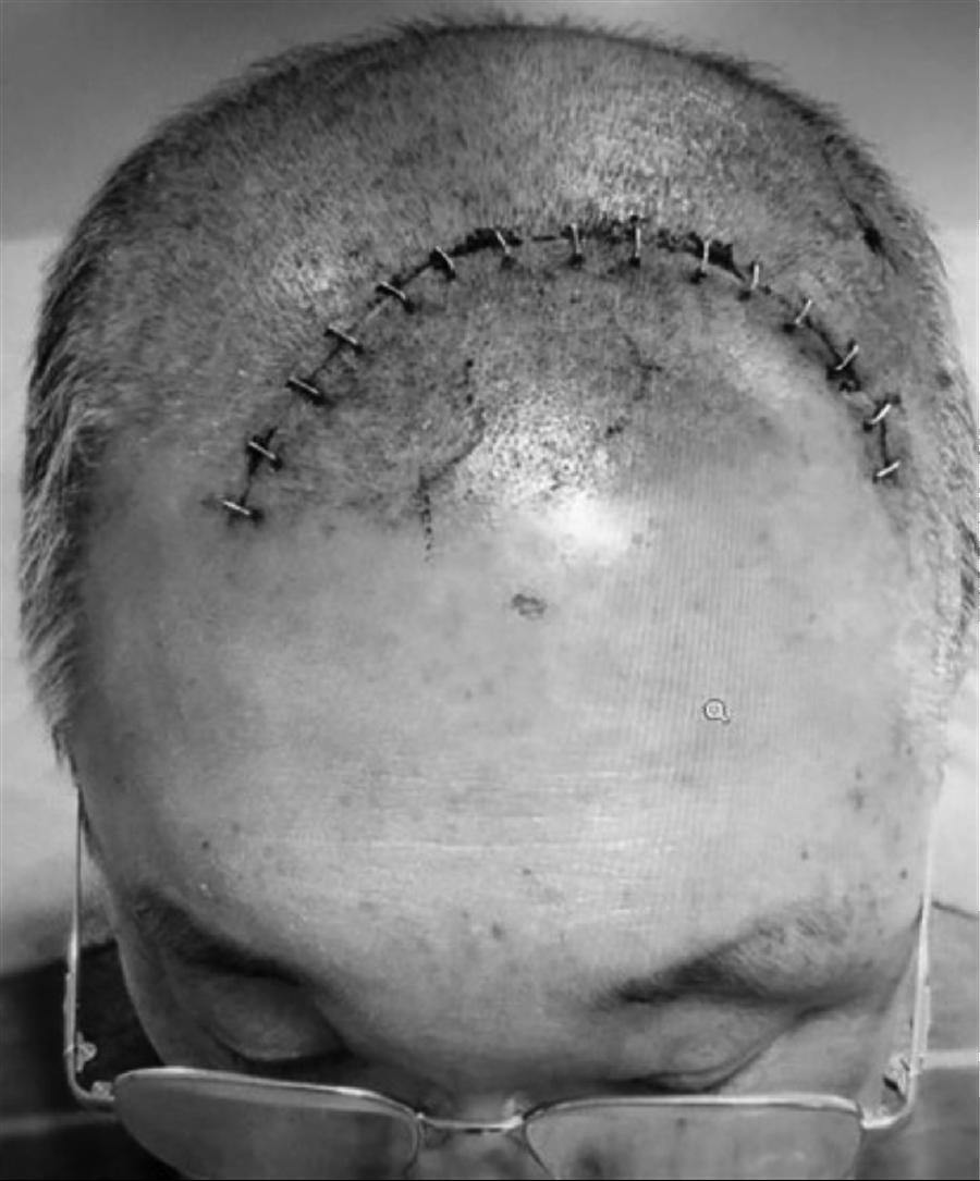楊威孫腦膜瘤開刀的疤痕,釘了15道鋼環釘。(圖片來源:楊威孫提供,圖片已黑白處理)