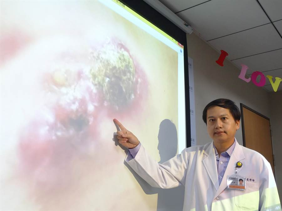 茂盛醫院乳房外科醫師黃啟瑜回憶黃女士到醫院就醫時,右乳腫瘤已穿破皮膚,並擴散到淋巴。(馮惠宜攝)
