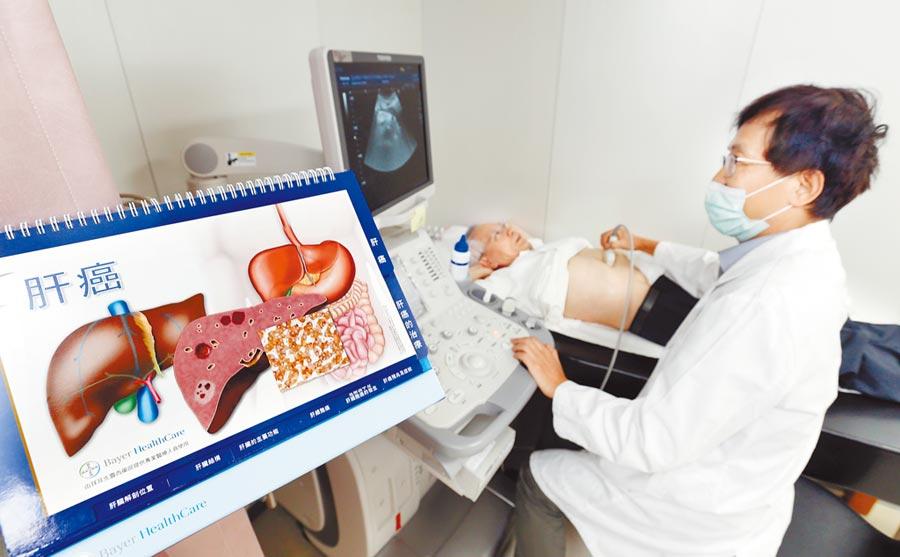 健保C肝新藥加碼 條件限縮