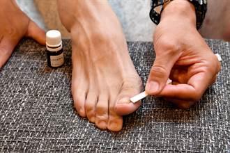 上班族愛健身 易罹患灰指甲!? 共用指甲剪惹的禍? 醫師:全家三代都得灰指甲