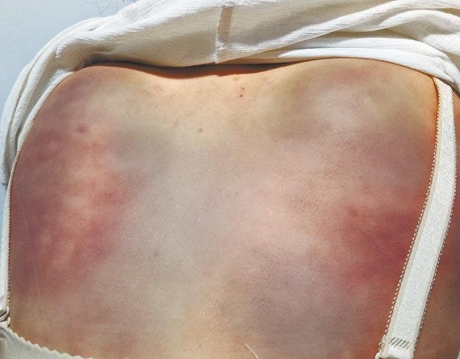 教內成員被毆打成背部全是瘀青、傷痕累累。(刑事局中打提供/陳世宗台中傳真)