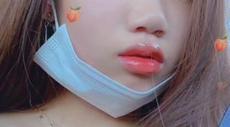 唇部保養NG觀念公開!醫師:凡士林「這樣用」是無效的