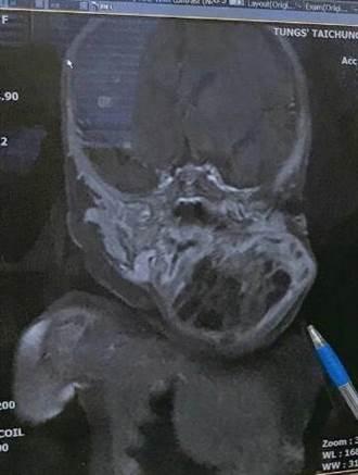 襁褓娃頸畸胎瘤 4.5公分險喪命