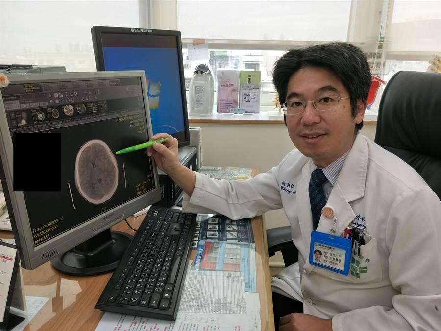 神經外科柯宗伯醫師筆指處為布迪腦出血部位(王文吉攝)