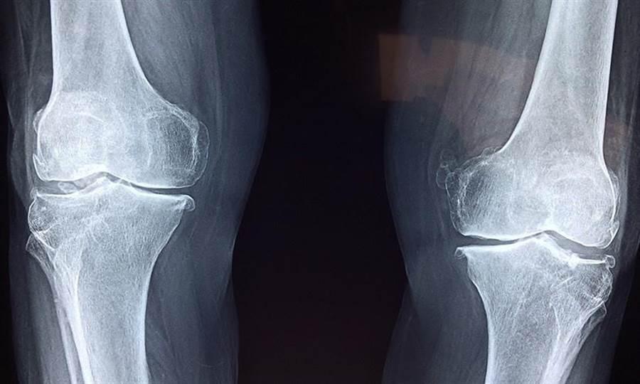 骨釘骨板的效期一般要求1年以上就足夠,原則上只要骨頭癒合,骨釘就功成身退。(圖片來源:pixabay)