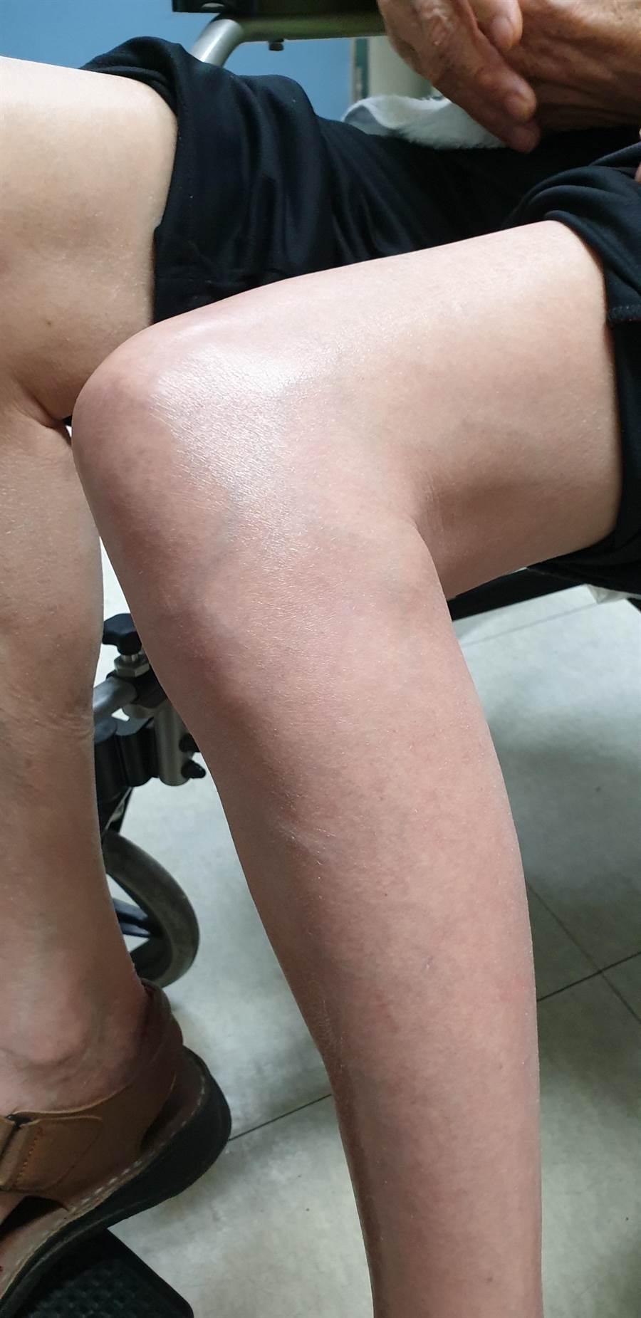 老翁看護發現他左大腿及小腿莫名紅腫,沒明顯外傷也不會痛,時間長達兩個禮拜。(彰化醫院提供/吳建輝彰化傳真)