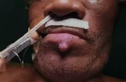 下唇冒出痘 竟是腎臟癌細胞轉移