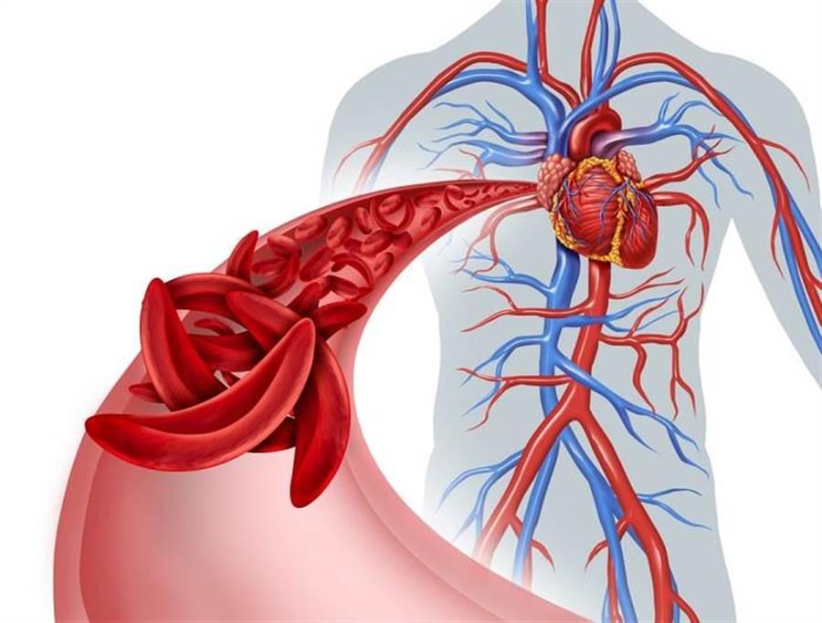 血管年輕健康與否,會影響你罹患心血管疾病的風險。(達志影像/shutterstock)