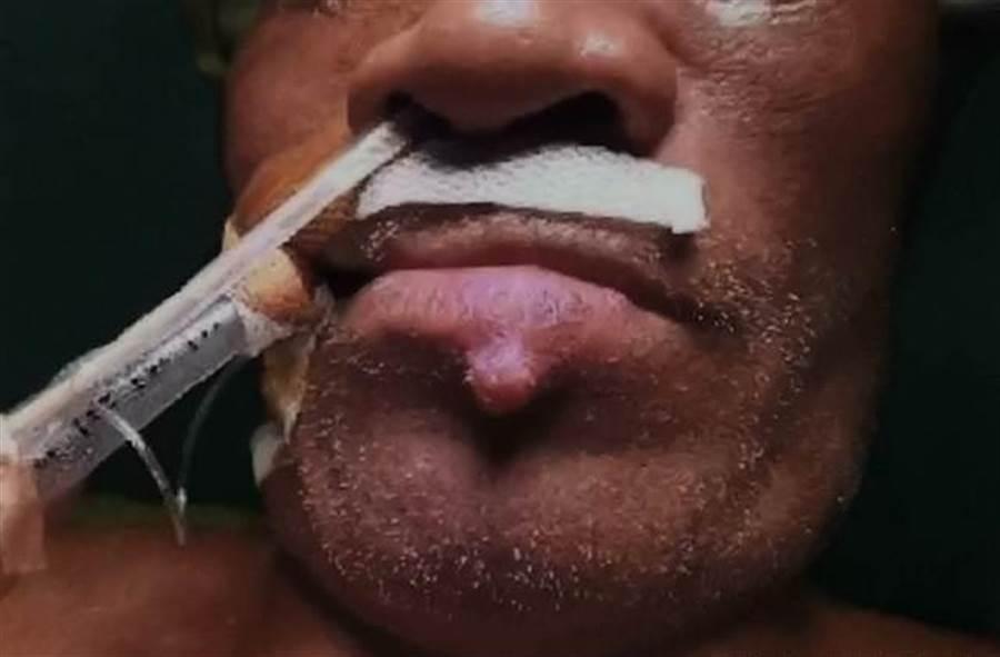 高雄一名60歲老翁半年來因腰痠且小便帶有血絲,甚至在下嘴唇冒出一顆如痘子般的腫塊,但不痛不癢讓他不以為意,沒想到血尿情況變更嚴重,到高醫求診竟被證實是罹患最末期的腎臟癌,而下唇那顆大痘痘,就是從腎臟轉移來的癌細胞。(高醫泌尿部主治醫師錢祖明提供/劉宥廷高雄傳真)