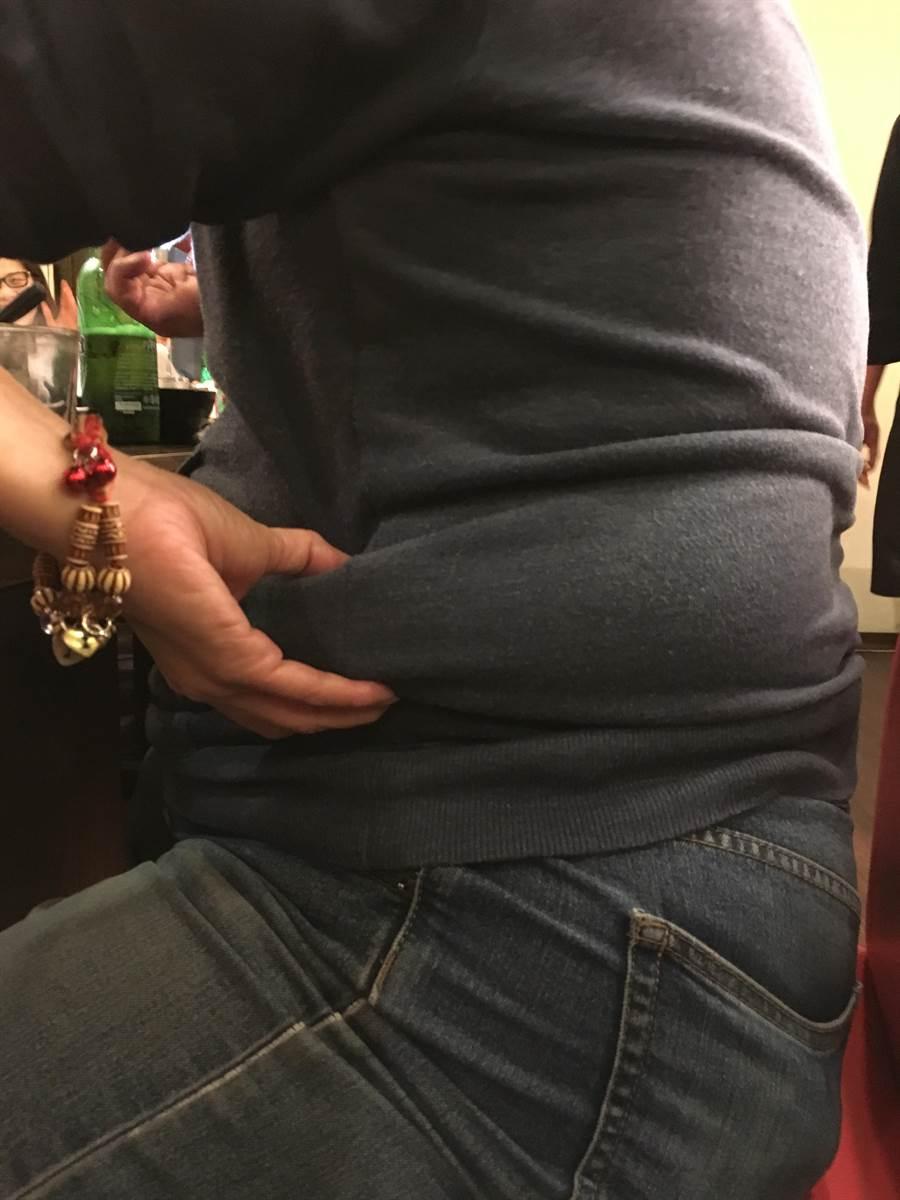 10月11日世界肥胖日,中市衛生局指出107年國人十大死因中8項與肥胖有關,肥胖已成為影響健康的重要問題。(馮惠宜攝)