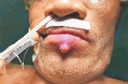 唇邊冒大痘 竟是腎臟癌轉移