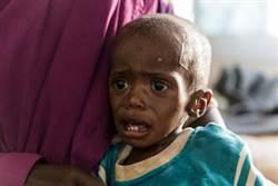 2000至2017年 全球1.3億兒童活不到5歲