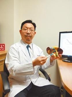 肝癌晚期聯合療法 存活率增26%