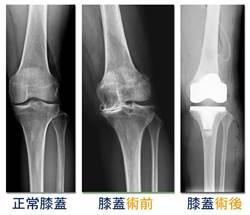港婦退化性關節炎 來台手術揮別疼痛