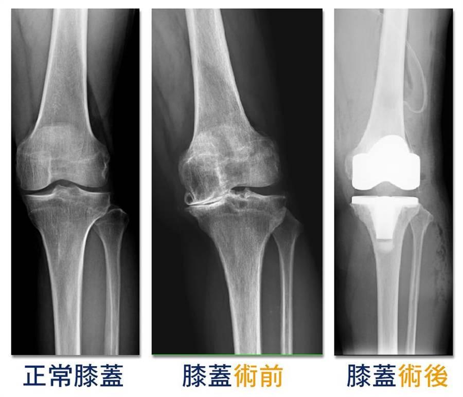 病患的左膝在術前(中)已達重度退化,須透過人工關節置換(右)治療。(光田綜合醫院提供/陳淑娥台中傳真)