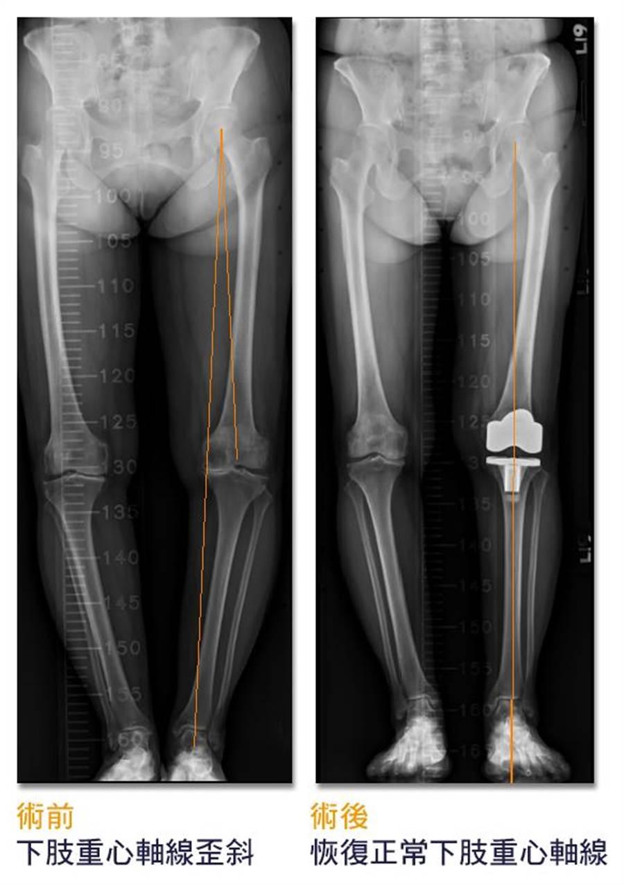 術前病患下肢重心軸線顏重歪斜,經手術治療且調整重心後,有利於病患行走且延長人工關節使用壽命。(光田綜合醫院提供/陳淑娥台中傳真)