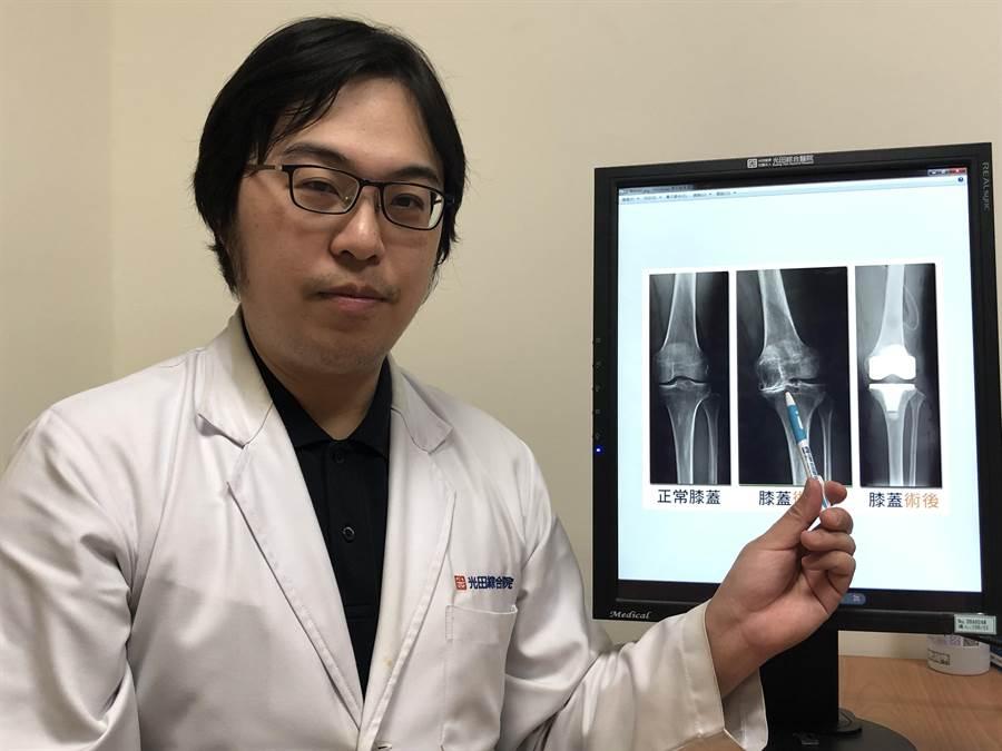 光田綜合醫院骨科部醫師蕭敬樺指出,病患的左膝在術前(圖中)已重度退化,疼痛致無法維持正常生活。(陳淑娥攝)