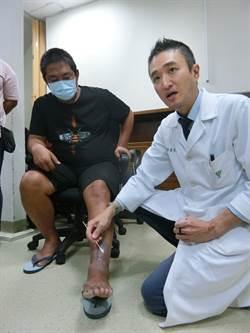 傷口超過2周未癒  細菌恐穿上金鐘罩