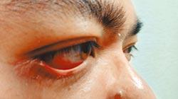 眼睛也會中風 多發於中老年人