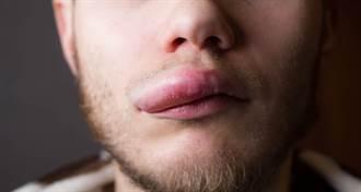 他上唇腫一包 夾出超肥幼蟲網嚇歪