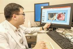 中醫大新竹醫院內視鏡粘膜下切除術 完整切除早期癌細胞