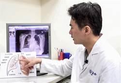 美食外送員肺癌高危險群 竹北東元醫院籲做檢查