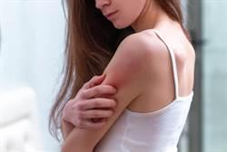 換季全身好癢!台大醫曝異位性皮膚炎惡化關鍵