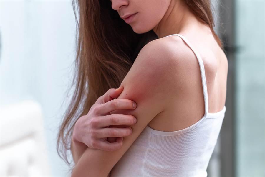 秋冬是異位性皮膚炎好發作的時期,冷熱溫差變化大,許多皮膚炎患者都在此時期感到病情惡化。(示意圖/shutterstock)