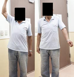 名.醫.問.診-肩關節疼痛 小心假性癱瘓