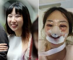 暴打前女友致重傷 新加坡醫:喝醉不記得