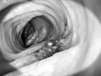 癌細胞最怕什麼?癌末殺手鐧曝光