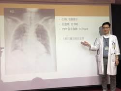 感冒不癒恐成致命肺炎 醫:這樣做少50%風險