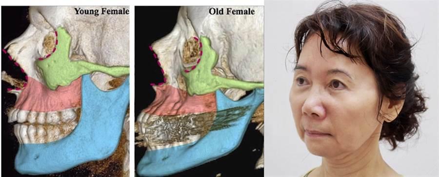 臉要緊緻要V  膠原蛋白要長在對的位置上