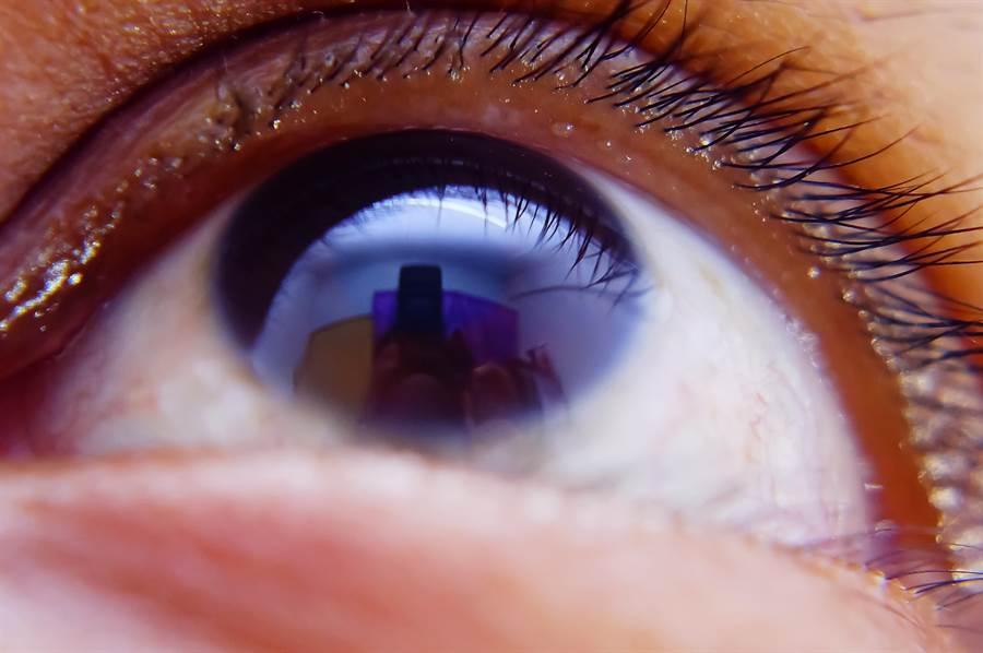 配戴到不適合的隱形眼鏡時,不一定會立即出現病徵,但若不解決,長期下來,可能對眼睛帶來不可逆的傷害。(圖/shutterstock)