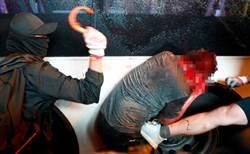 頭破血流!誤認是陸客 日男慘遭港抗議群眾毆打