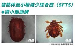 國內首度爆SFTS 70歲老翁遭蜱咬救治中