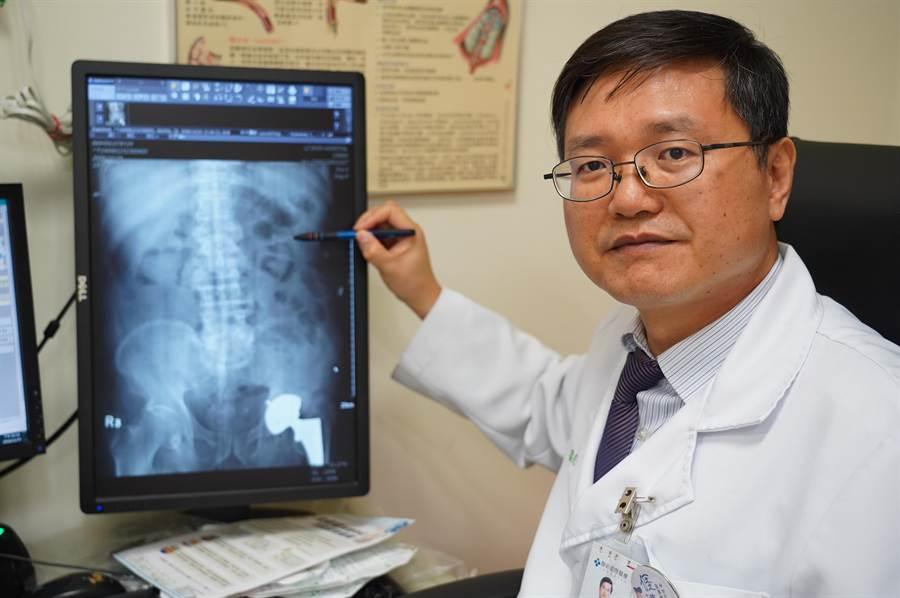 聯新國際醫院腎臟科主任林盈光長期支援社區看診,也宣導轉診的重要性。(聯新國際醫院提供/邱立雅桃園傳真)