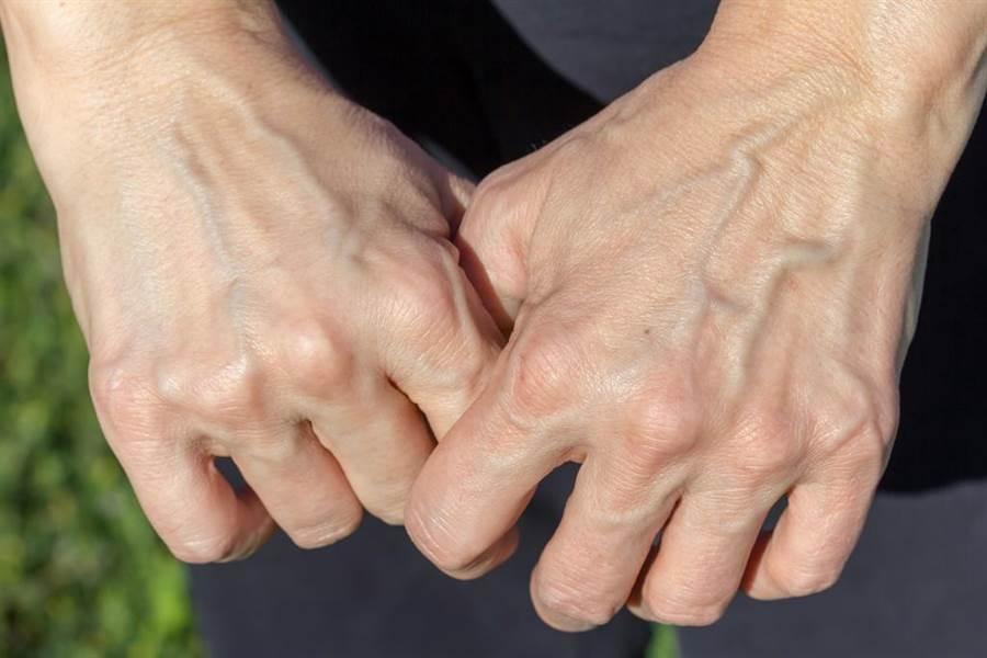 手爆青筋代表血管硬化?醫師解答,因為血流量變大使得血管突出。(示意圖/達志影像)