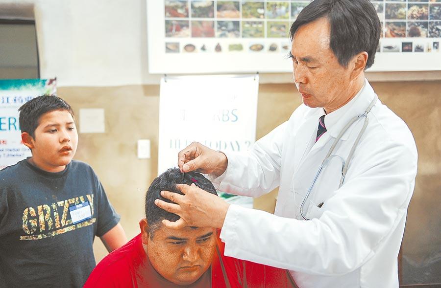 一名中醫師在美國某社區義診活動上,為患者進行針灸治療。(新華社資料照片)