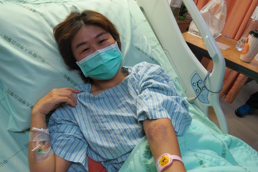 林姓女駕駛全身多處挫傷、瘀青,目前仍住院治療,她氣憤台鐵第一時間推卸責任,要求道歉。(林欣儀攝)