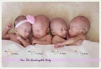 4胞胎的代價 華裔網紅來台整腹救腰痛