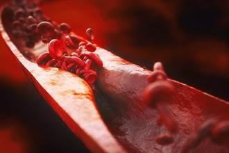50歲後易動脈硬化 醫:每天2碗它清油護血管