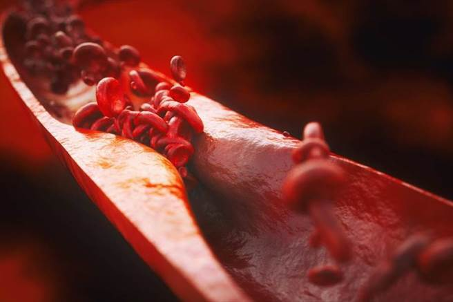 50歲易有動脈硬化 日本醫師建議:每天2碗蔬菜未增湯,清油護血管。(達志)