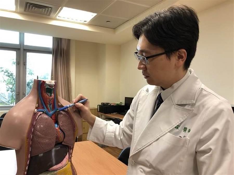 台中慈濟醫院胸腔外科醫師柯志霖表示,畸胎瘤長到超過10公分極為少見。(王文吉攝)