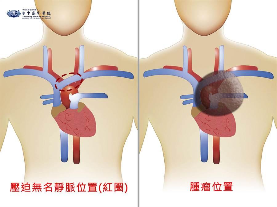 腫瘤壓迫無名靜脈位置示意圖。(台中慈濟醫院提供/王文吉台中傳真)