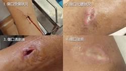 清潔婦染蜂窩性組織炎 擅自停用抗生素病情惡化