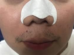 鼻貼上黏的不是黑頭粉刺!食藥署出面闢謠