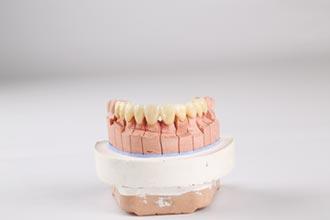 和成氧化鋯全瓷牙冠 業界高標